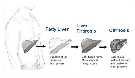 steroids elevated blood pressure