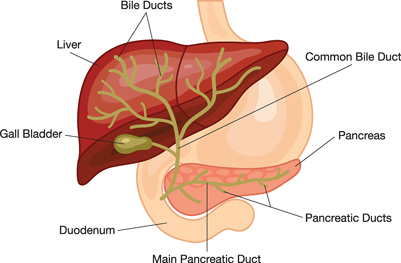 Transplant surgery primary biliary cirrhosis this damage to the liver tissue can lead to cirrhosis a condition in which the liver slowly deteriorates and is unable to function normally ccuart Image collections